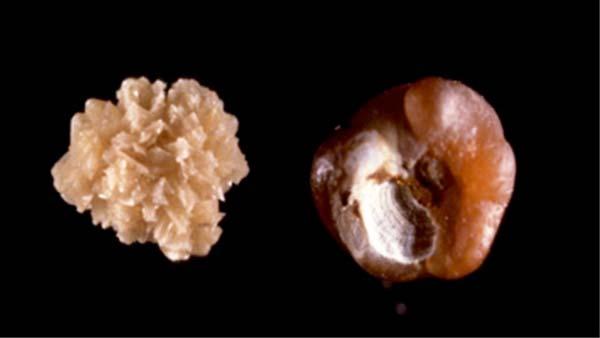 centre d urologie sud parisien urologie paris sud chirurgie urologue chirurgien cancerologie lithiase urinaire quincy sous senart 91480 paris suivi therapeutique lithiase urinaire